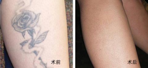 郑州洗纹身店讲述如何清除不喜欢的纹身?|洗纹身-郑州天龙纹身工作室