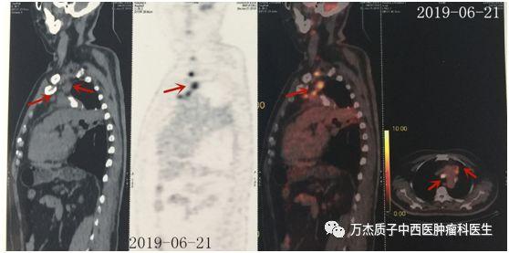 典型病例—老年肺鳞癌质子治疗