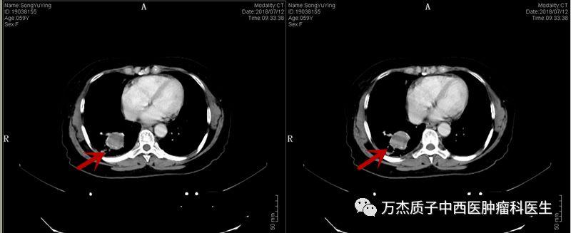 典型病例-IIIB期小细胞肺癌质子治疗后肿瘤消失