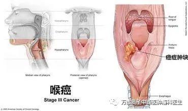 质子治疗肿瘤的山东经验-喉癌