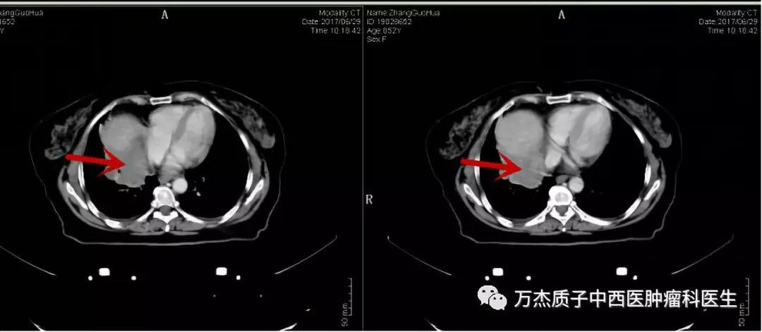 典型病例-结肠癌术后肝转移的质子治疗