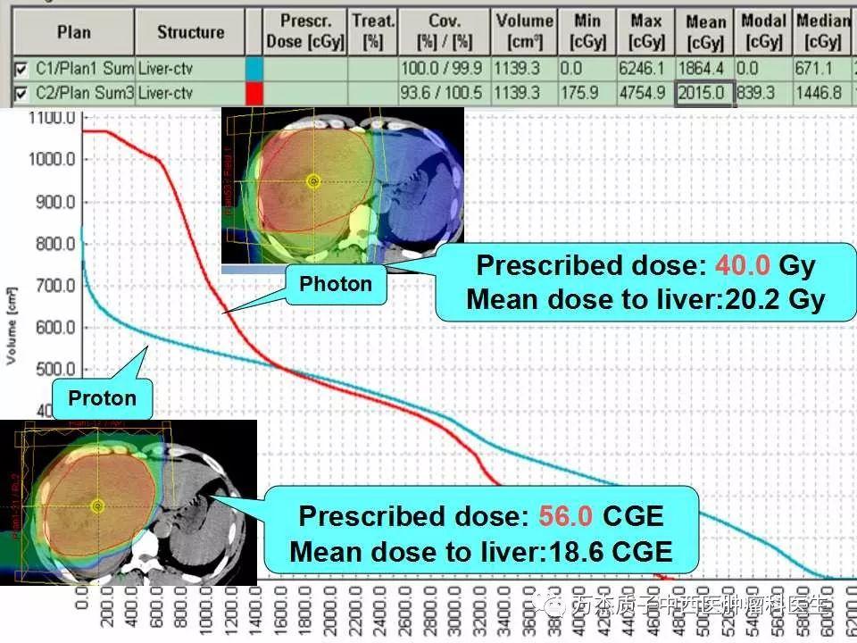 典型病例-原发性肝癌的质子治疗