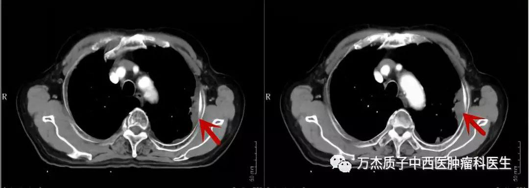 典型病例—局部晚期肺癌的质子治疗