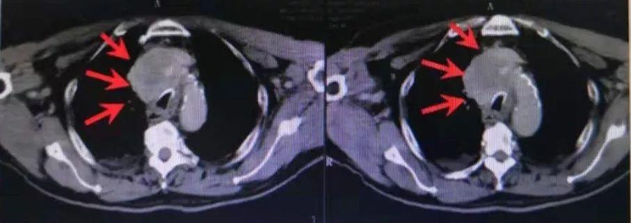 典型病例—质子治疗纵隔型肺癌1例,肿瘤控制满意