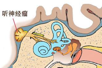 质子治疗较大听神经瘤缩略图