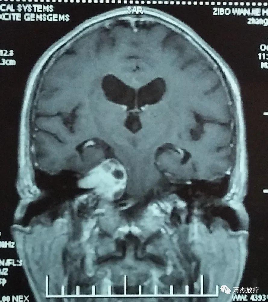 较大听神经瘤质子治疗病例分享