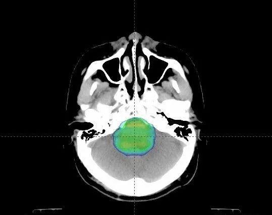 典型病例-脑干胶质瘤质子治疗后九月,效果良好