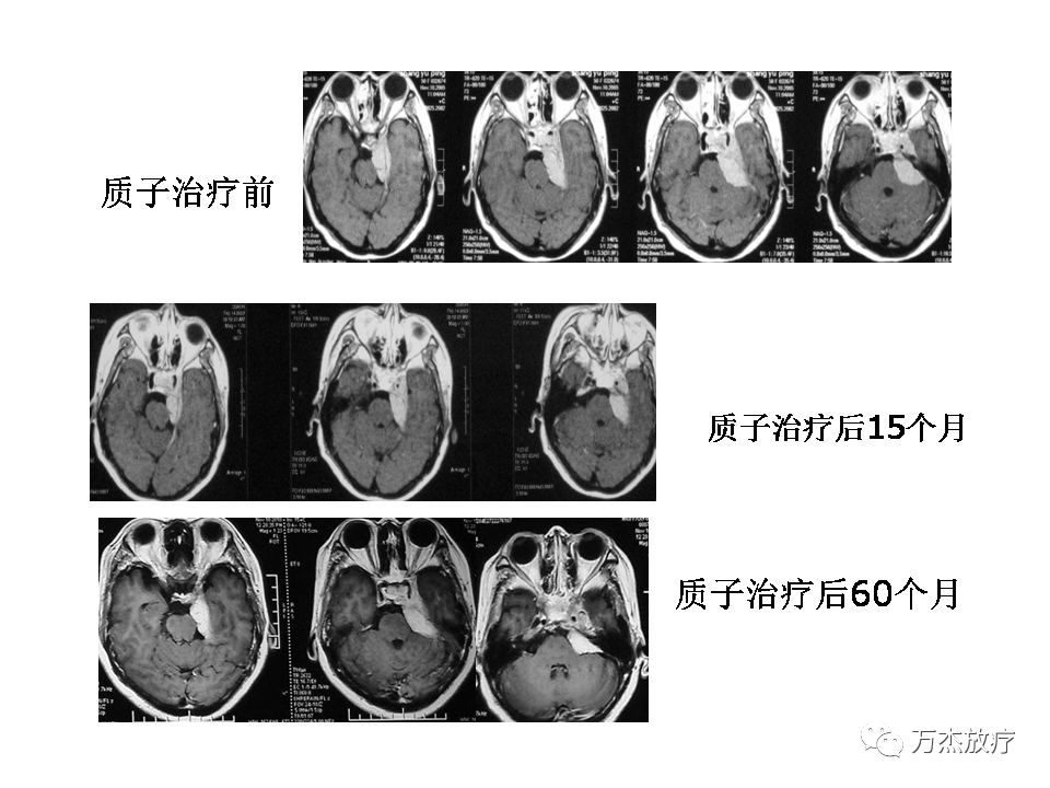 脑膜瘤的质子治疗