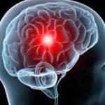 脑转移瘤的质子治疗缩略图