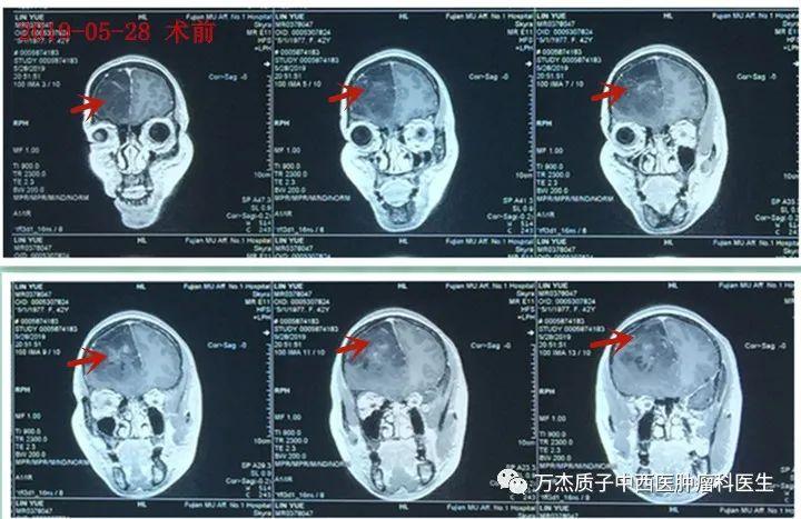 脑癌之王-胶母细胞瘤质子治疗效果良好