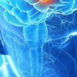 脑癌之王胶母细胞瘤质子治疗效果良好缩略图